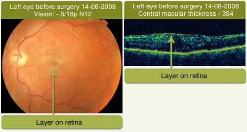 Drushti Eye And Retina Center Macular Pucker