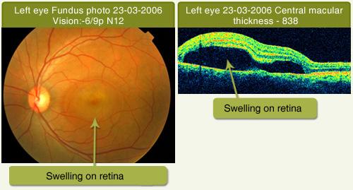 Drushti Eye And Retina Center Central Serous Retinopathy
